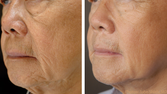 Elos Non Surgical Facelift Skin Tightening Burbank Glendale Ca